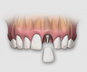 denatl_implant
