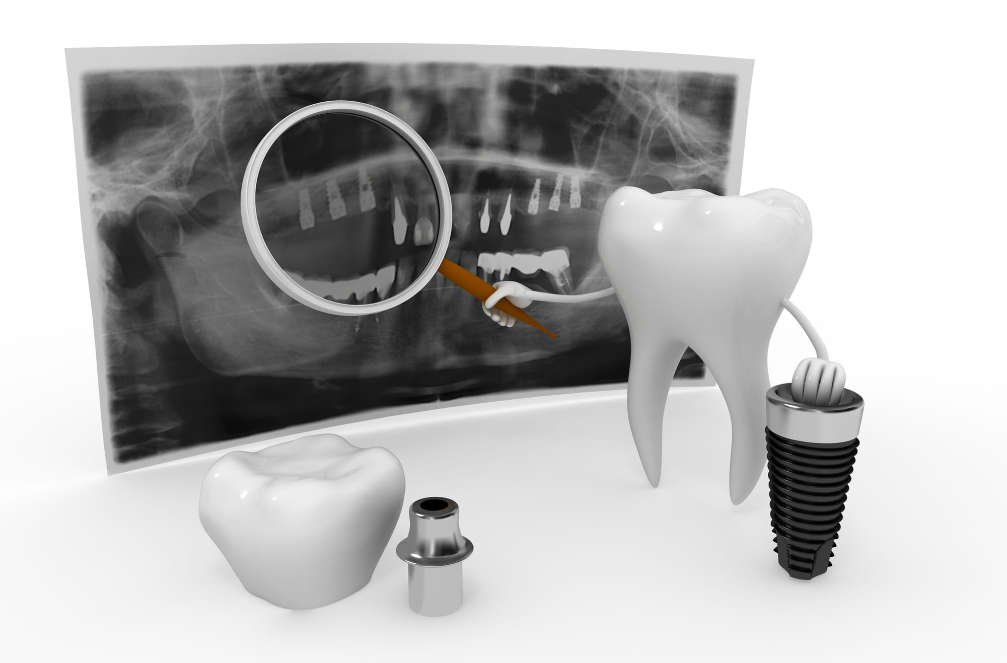 where can i find the best dental implants in tamiami to get me strong teeth?